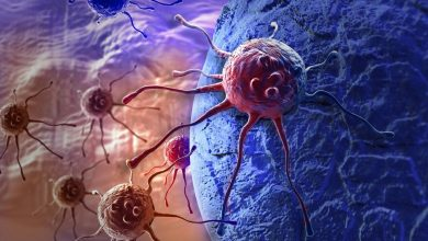 Photo of Cancer spread increases with higher bad 'blood fat' levels